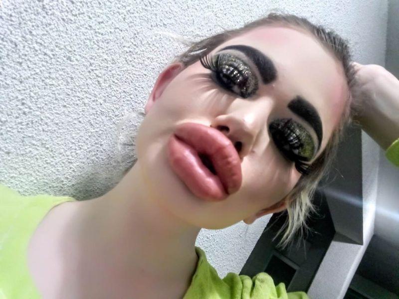 【驚愕】唇、胸、お尻を巨大化するために美容整形を繰り返してしまった改造人間まんさん!!(画像)・2枚目