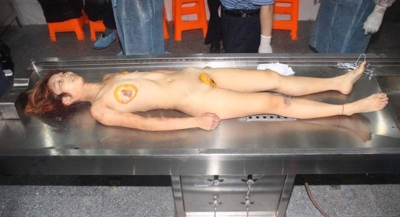 【閲覧注意】中国行方不明になった美少女、おっぱいとマンコが切除されたレイプ遺体となって発見される・・・・・(画像)・6枚目