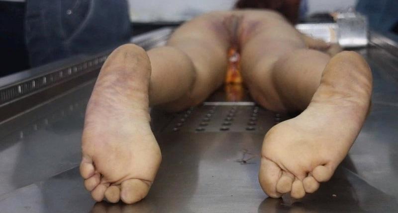 【閲覧注意】中国行方不明になった美少女、おっぱいとマンコが切除されたレイプ遺体となって発見される・・・・・(画像)・8枚目