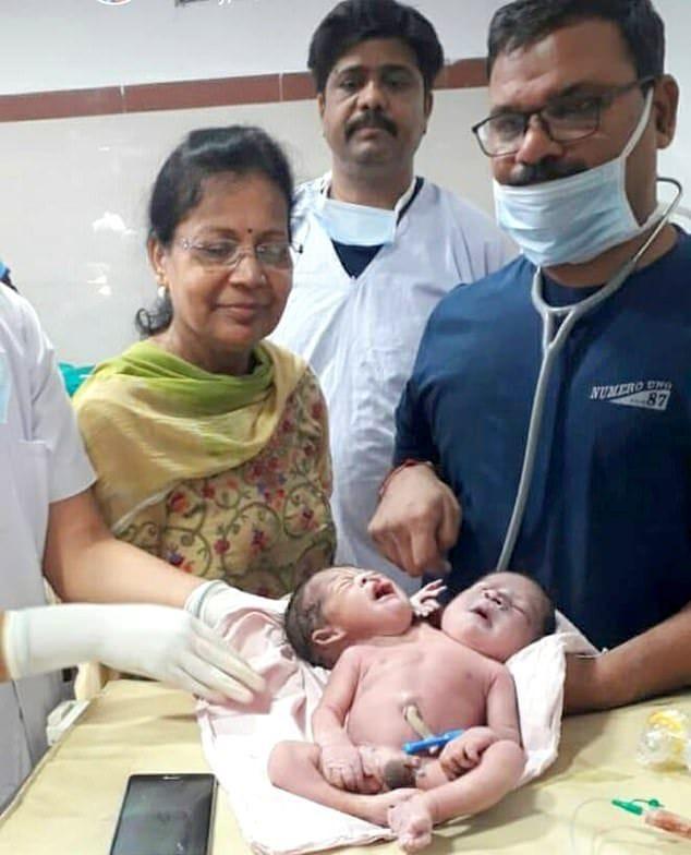 """【ショック】インドの女性から生まれた""""神の使い""""、母親を気絶させてしまう・・・・(画像)・2枚目"""