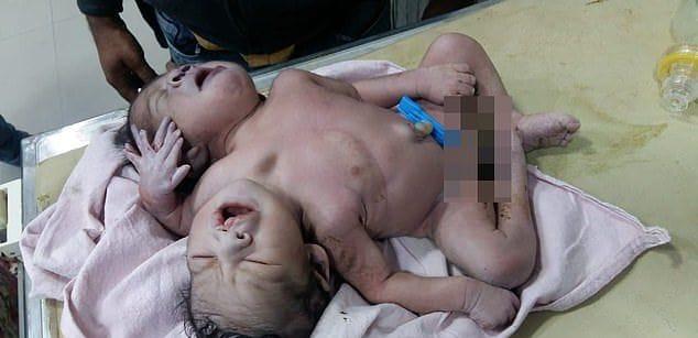 """【ショック】インドの女性から生まれた""""神の使い""""、母親を気絶させてしまう・・・・(画像)・3枚目"""