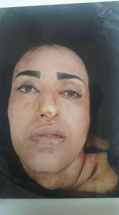 【グロ注意】風光明媚なエジプトの観光都市アレクサンドリアで発見された少女の惨殺遺体、バラバラに切り刻まれる・・・・(画像)・2枚目