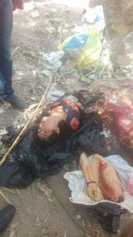 【グロ注意】風光明媚なエジプトの観光都市アレクサンドリアで発見された少女の惨殺遺体、バラバラに切り刻まれる・・・・(画像)・3枚目