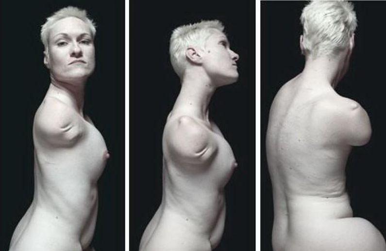 """【胸糞注意】""""ダルマ エロ""""でググるとでてくる人間の業が深すぎる四肢欠損女子のエロ画像・・・・・・7枚目"""