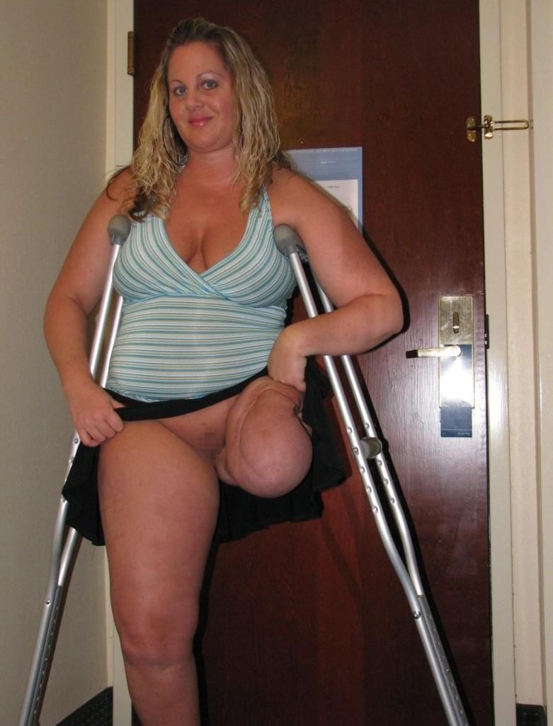 """【胸糞注意】""""ダルマ エロ""""でググるとでてくる人間の業が深すぎる四肢欠損女子のエロ画像・・・・・・11枚目"""