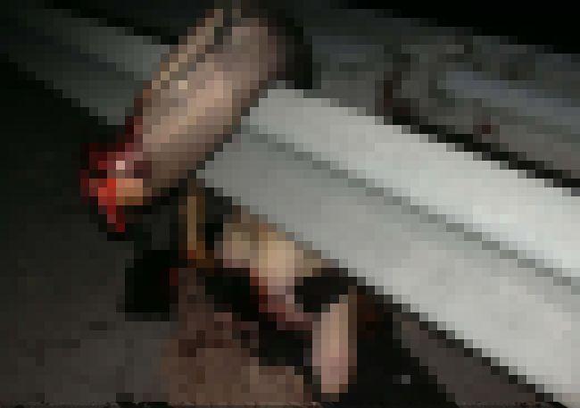 【閲覧注意】裸でガードレールに引っかかったおっぱいまんさん、手足が・・・・・(画像)・1枚目