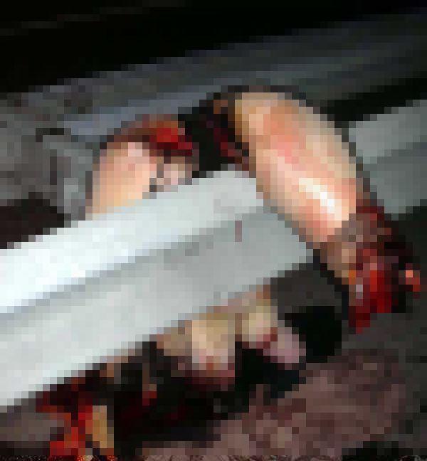 【閲覧注意】裸でガードレールに引っかかったおっぱいまんさん、手足が・・・・・(画像)・2枚目